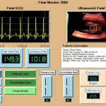 A fetal monitor simulation created using QCRTGraph